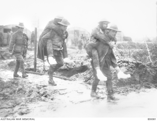 Trench foot Australian Army Western Front 1916 December